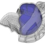 SPDM-System-MSC-_Software-Untersuchung-Fahrradunfälle